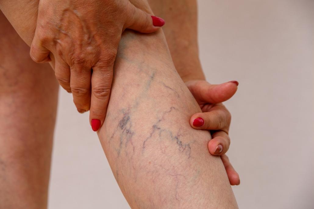 Chứng suy giãn tĩnh mạch ở chân